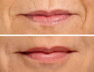 restylane-silk-lipsperioral